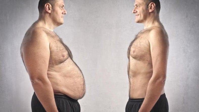 Зaтлъстяването – съвременен медицински проблем