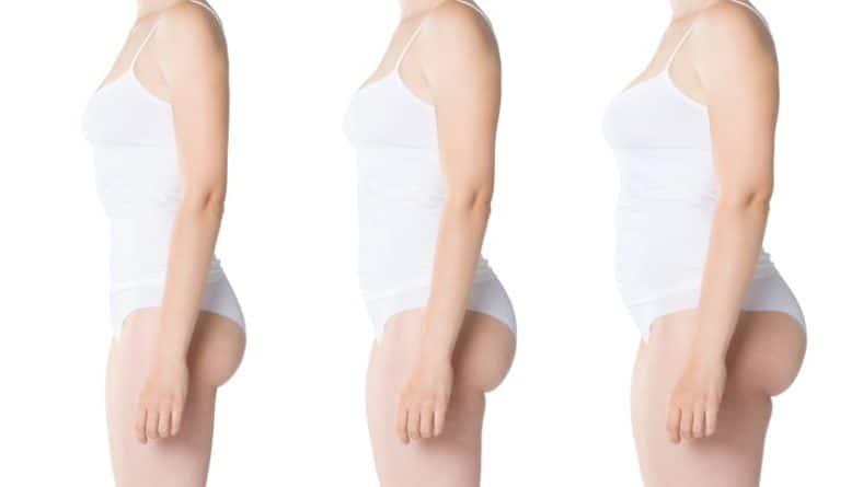 Затлъстяване – как да му се противопоставим?